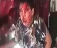 «بابا اقتلني» صرخة طفل يطلب الموت لإنهاء تعذيبه